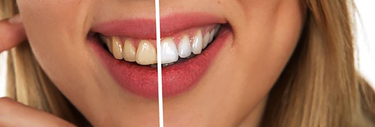 usmev - biele zuby